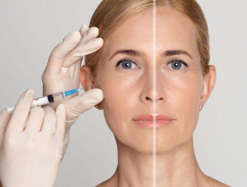Arcfiatalítás botox-szal