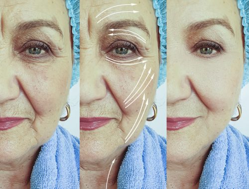 Bioszálas arcfiatalítás